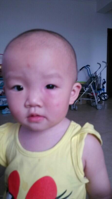 宝宝眼睛那里被蚊子咬了,肿得好大,有什么好的