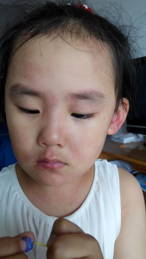 跪求姐妹们帮帮我的女儿,女儿浑身长荨麻疹_宝