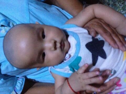 宝宝脖子歪_宝宝歪脖子怎么办如何预防与纠正婴儿歪脖子