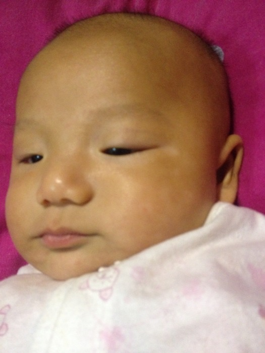 宝宝脸上长白斑了,有没有宝妈知道怎么会长白
