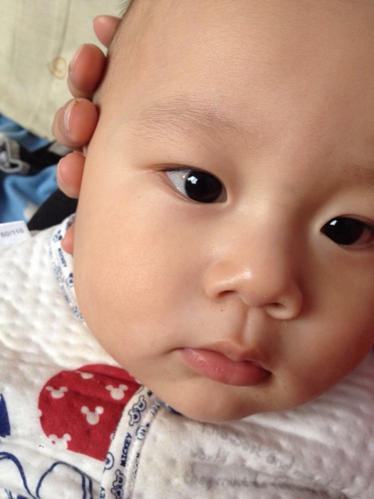 请问男宝11个月了。昨天晚上眼睛有红血丝是