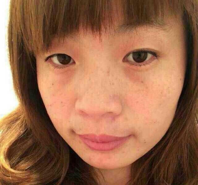迫不及待来分享我的去斑路程_美妆护肤圈