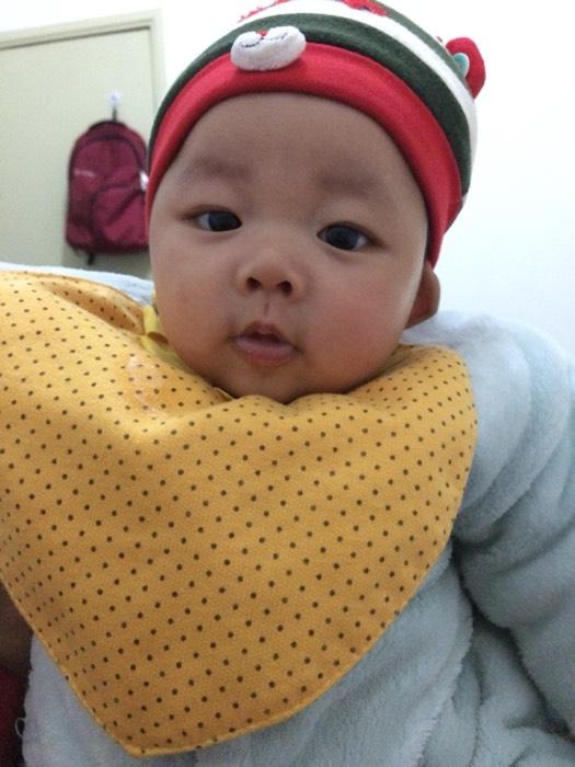 我家宝四个月了,早上睡醒眼角眼屎很多,不知道