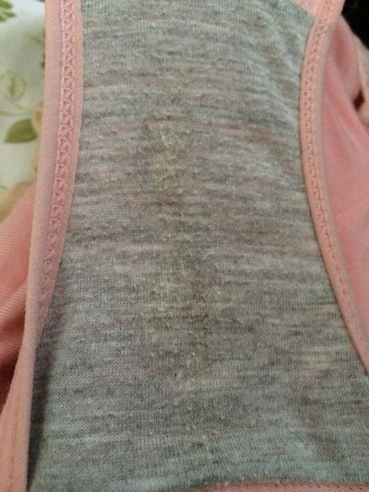 带干了之后内裤背面有水印 这是褐色分泌物吗