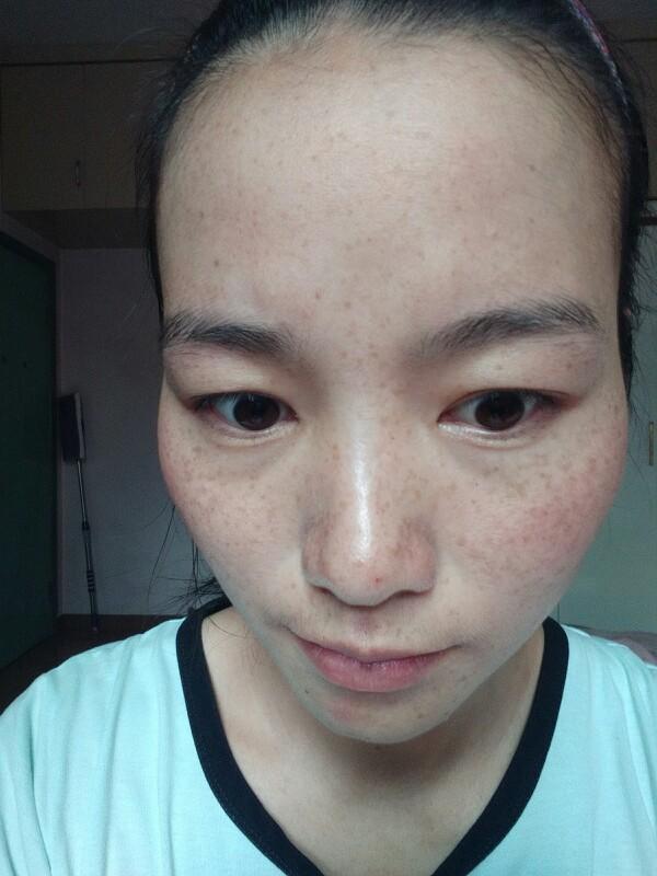 我的祛斑妙招_美妆护肤圈