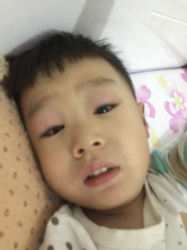 宝宝眼睛肿了怎么办_宝宝常见病圈