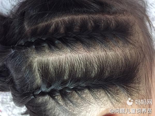 【萌宝发型PK】a发型编发侧漏,从公主转变到酷月经期烫发没卷马图片