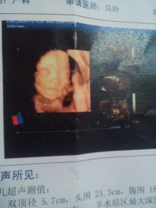 怀孕24周四维彩超图片,有经验的宝妈帮我看看是男是女图片
