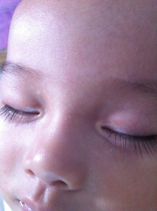 宝宝额头有黄斑