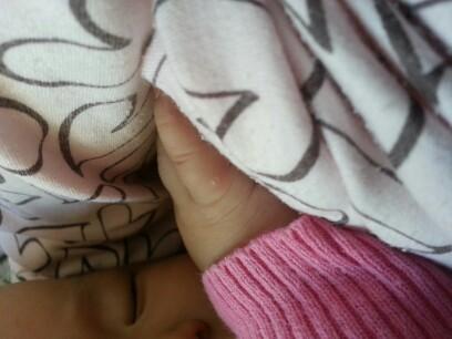 宝宝七个月了,昨天突然发现手上有个水泡