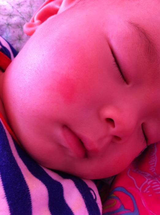 宝宝脸上和身上起了一些红色的泡