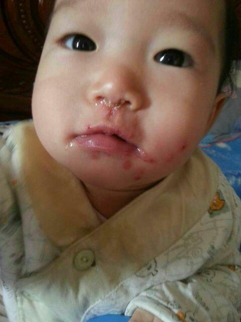 宝宝嘴巴起泡泡,怎么办 医生开药来喷都不管用