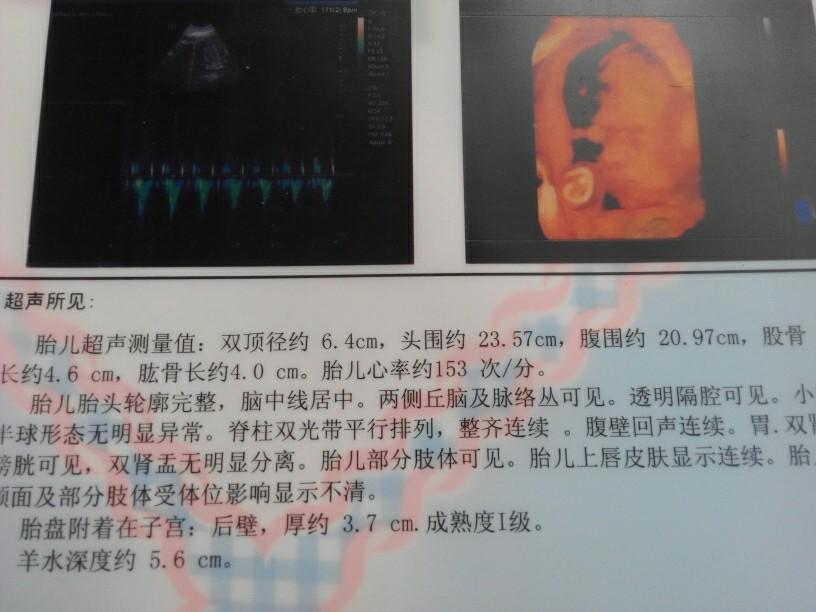 四维彩超 孕4 7月圈 妈妈网图片