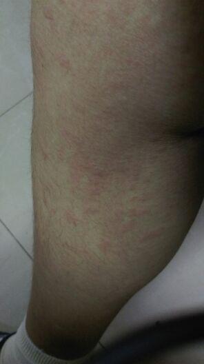 为什么莫名其妙手上脚上起红疹