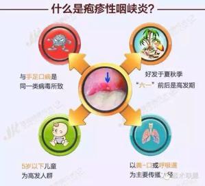 幼儿园疱疹性咽峡炎大爆发!比手足口病还厉害?