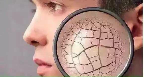 你的皮肤也在缺水吗