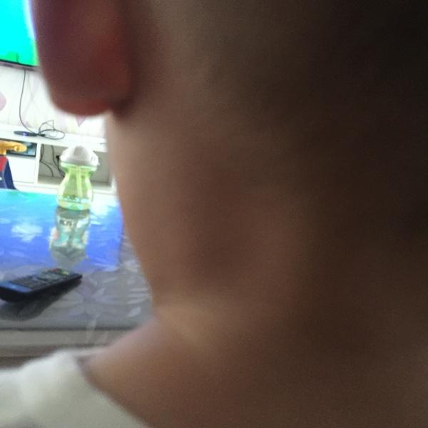 一岁八个月的宝宝,耳朵后面肿了是什么原因
