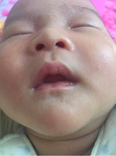 宝宝嘴唇上起泡是什么原因 生日2015年09月宝宝圈
