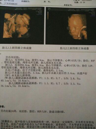 双胎24周,今天四维彩超顺利通过,给宝妈们一点正能量图片