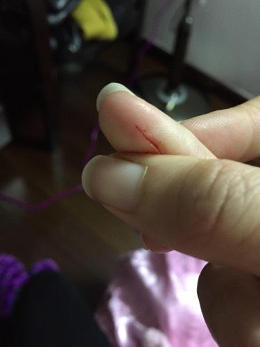 手指被生锈的伞骨割破了,如图,要打破伤风么
