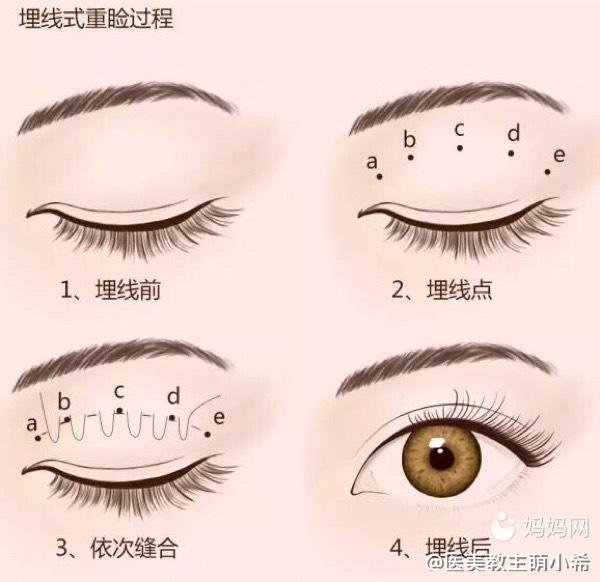 埋线双眼皮手术到底能够维持多久?