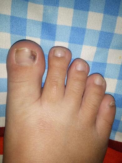 ,怀孕七个多月了,脚趾甲里长出跟瘀血似的东西