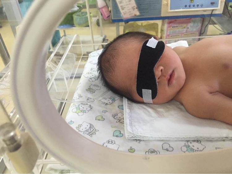 ,我家宝宝就是指甲发紫,比较爱嗜睡,进儿科那天上午都不肯喝奶了