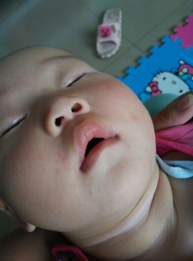 宝宝嘴四周经常起泡泡是什么