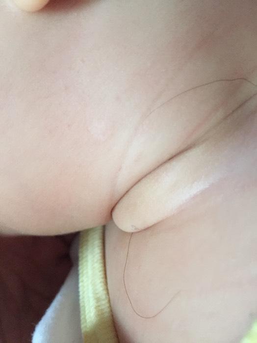 宝宝脖子出生到现在都有一黄豆大小白点