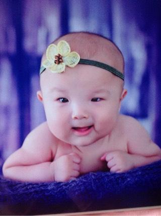 发型设计 婴儿三个月不长头发 > 额头不长头发图片_额头不长头发图片