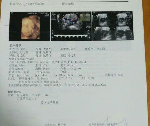 32周 1天四维彩超结果比实际孕周大9天图片